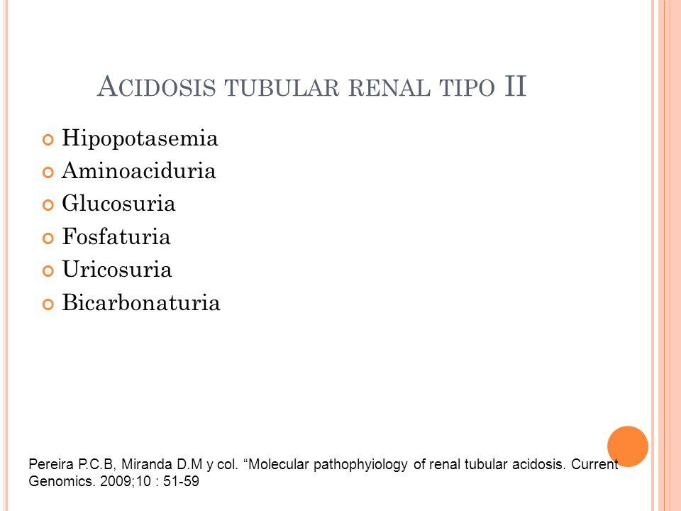Acidosis tubular renal tipo II