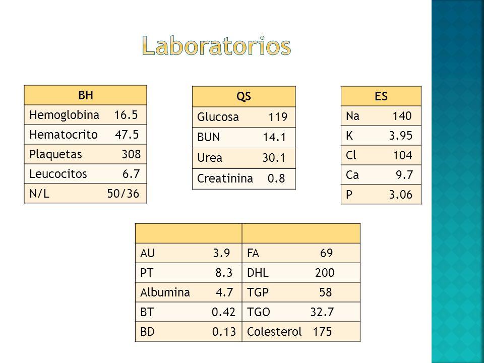 Laboratorios BH Hemoglobina 16.5 Hematocrito 47.5 Plaquetas 308
