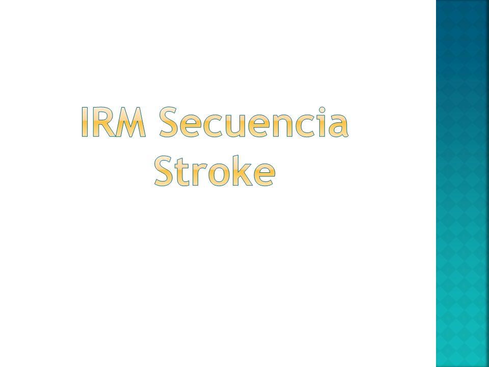 IRM Secuencia Stroke