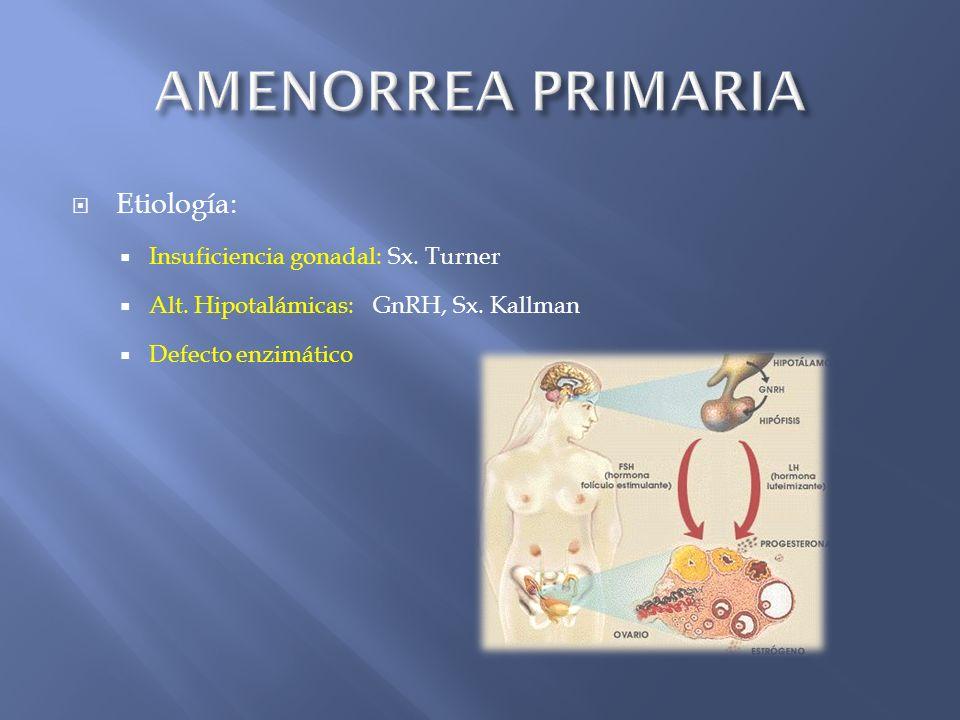AMENORREA PRIMARIA Etiología: Insuficiencia gonadal: Sx. Turner