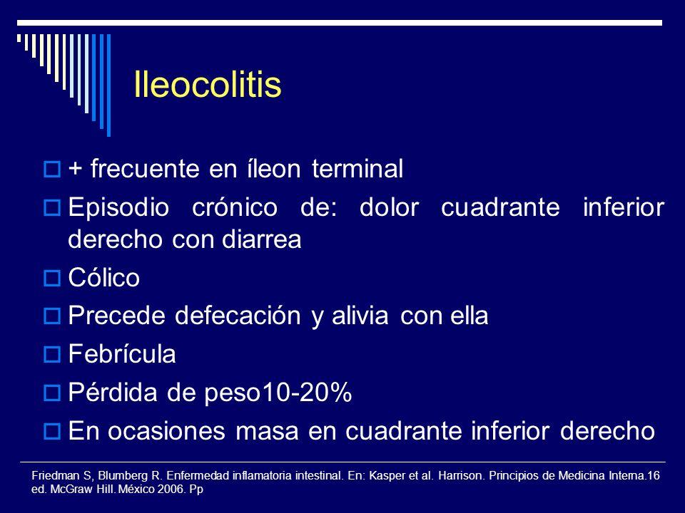 Ileocolitis + frecuente en íleon terminal