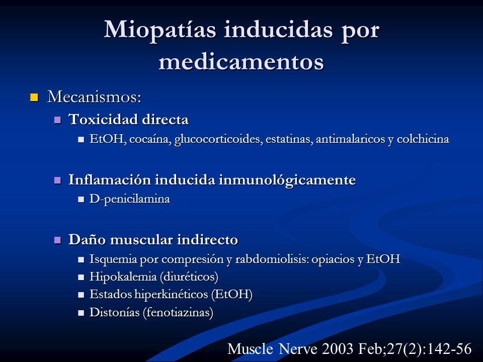Miopatías inducidas por medicamentos