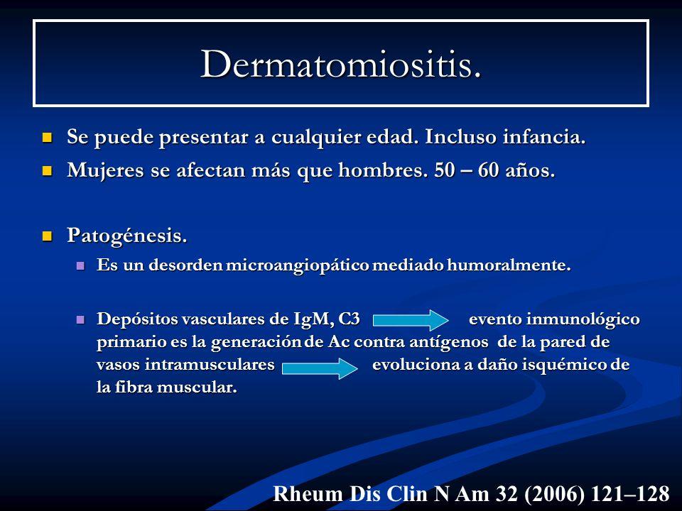 Dermatomiositis. Se puede presentar a cualquier edad. Incluso infancia. Mujeres se afectan más que hombres. 50 – 60 años.