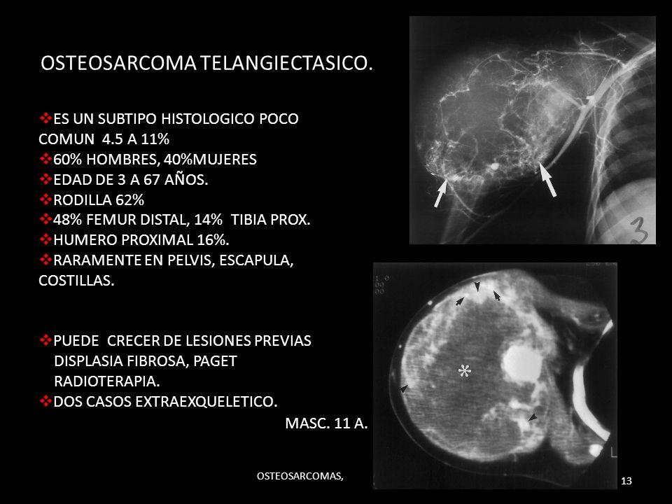 OSTEOSARCOMA TELANGIECTASICO.