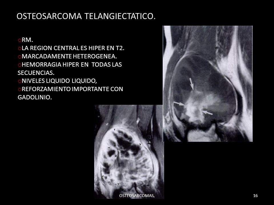 OSTEOSARCOMA TELANGIECTATICO.