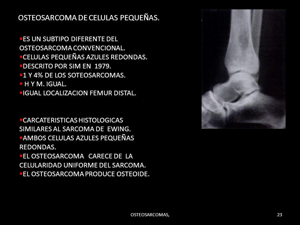 OSTEOSARCOMA DE CELULAS PEQUEÑAS.