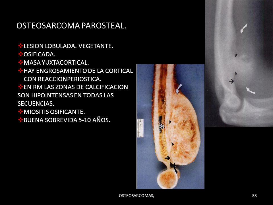 OSTEOSARCOMA PAROSTEAL.