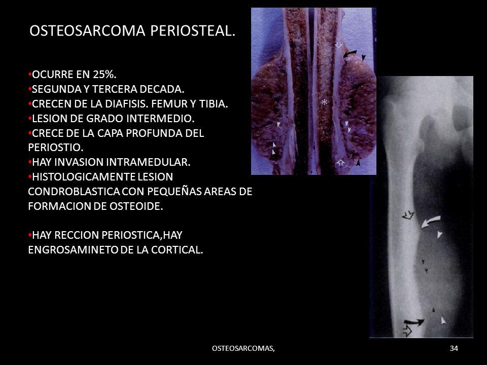 OSTEOSARCOMA PERIOSTEAL.