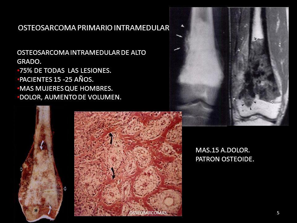 OSTEOSARCOMA PRIMARIO INTRAMEDULAR.