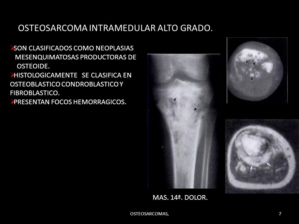 OSTEOSARCOMA INTRAMEDULAR ALTO GRADO.