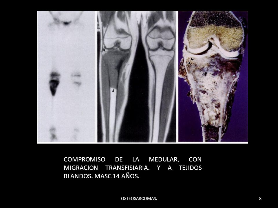 COMPROMISO DE LA MEDULAR, CON MIGRACION TRANSFISIARIA