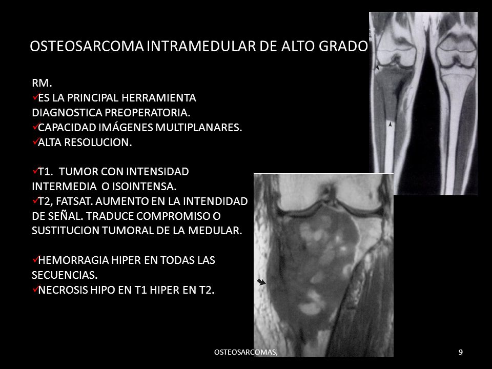 OSTEOSARCOMA INTRAMEDULAR DE ALTO GRADO.