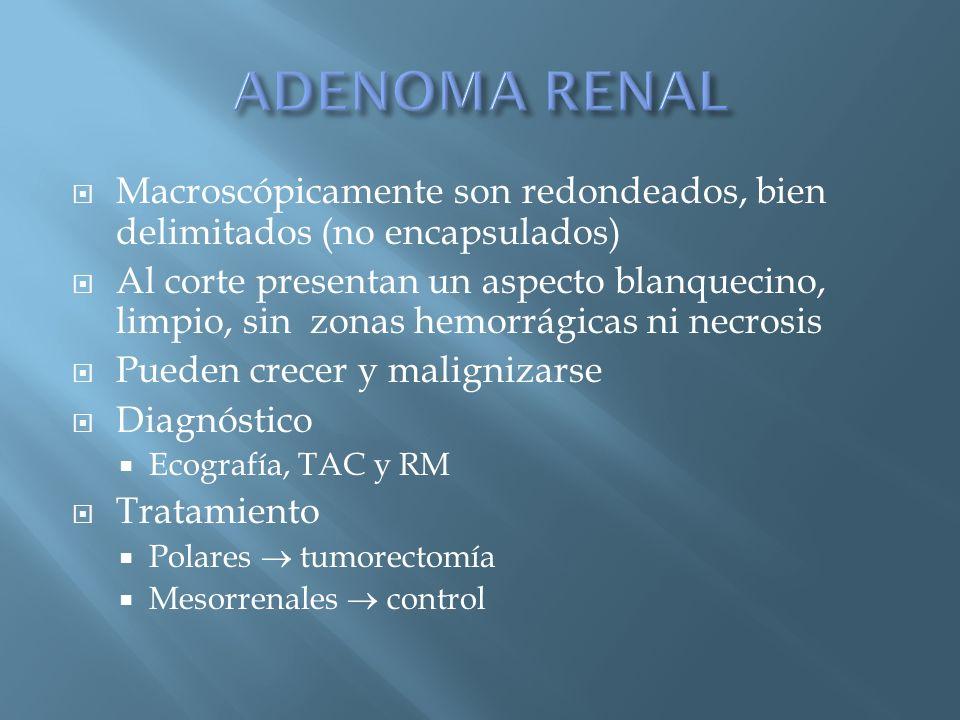 ADENOMA RENAL Macroscópicamente son redondeados, bien delimitados (no encapsulados)
