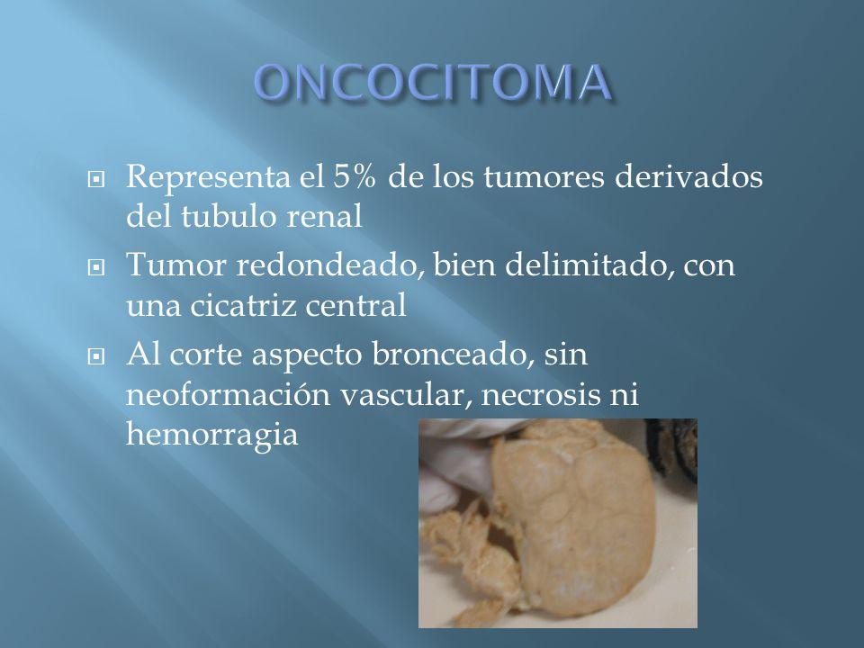 ONCOCITOMA Representa el 5% de los tumores derivados del tubulo renal