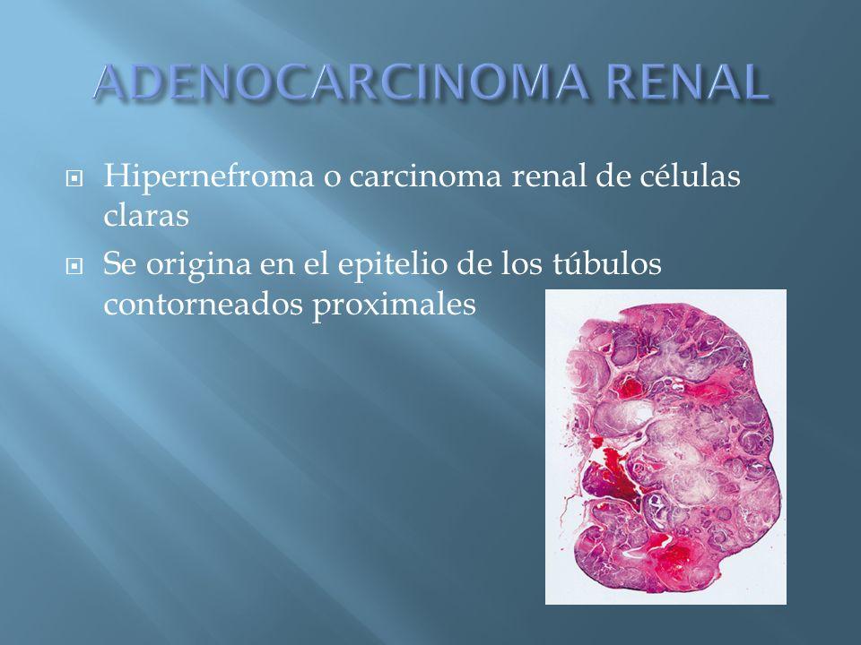 ADENOCARCINOMA RENAL Hipernefroma o carcinoma renal de células claras