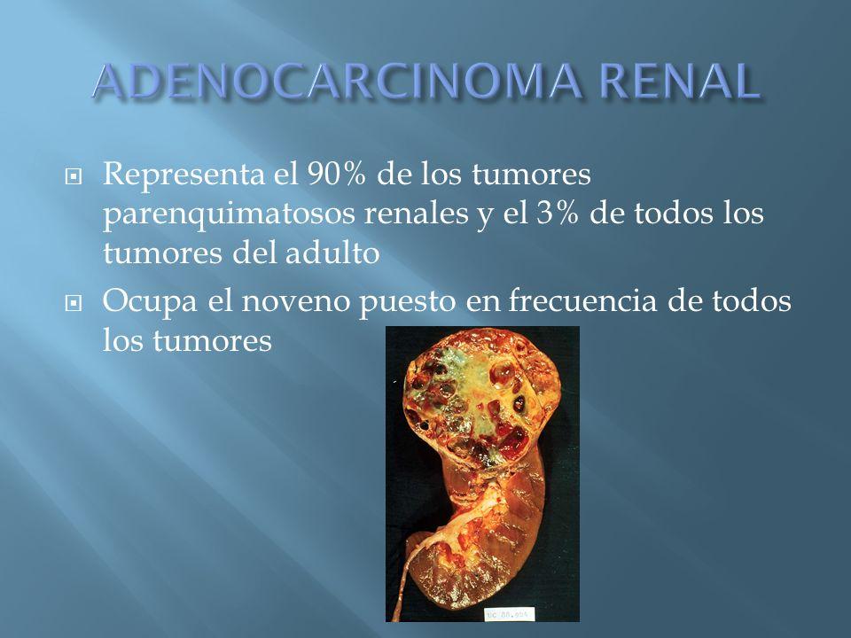 ADENOCARCINOMA RENAL Representa el 90% de los tumores parenquimatosos renales y el 3% de todos los tumores del adulto.