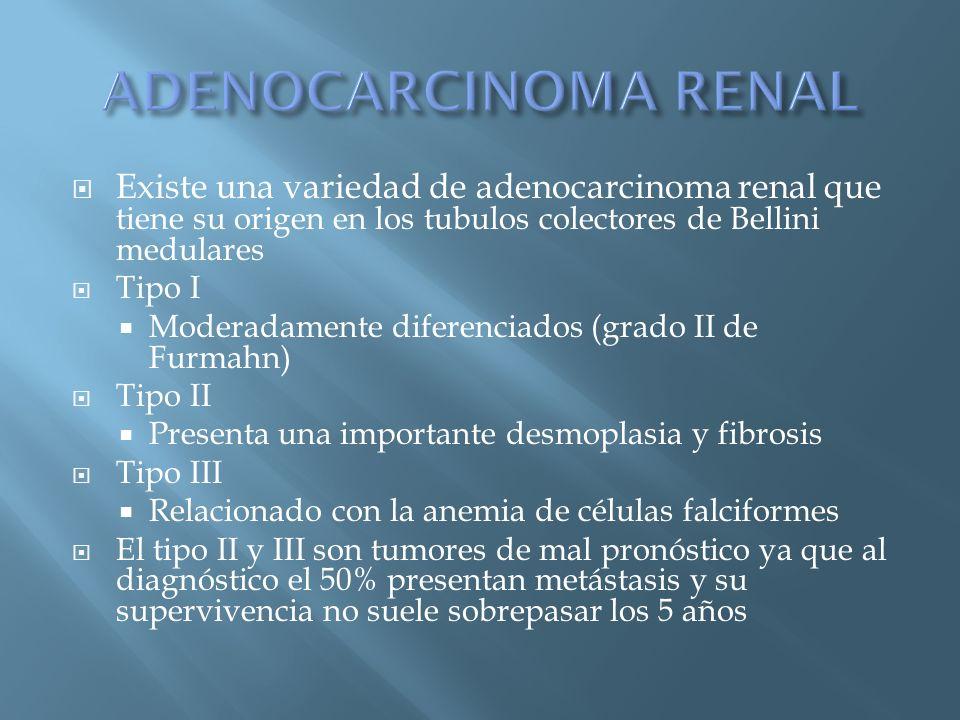 ADENOCARCINOMA RENAL Existe una variedad de adenocarcinoma renal que tiene su origen en los tubulos colectores de Bellini medulares.