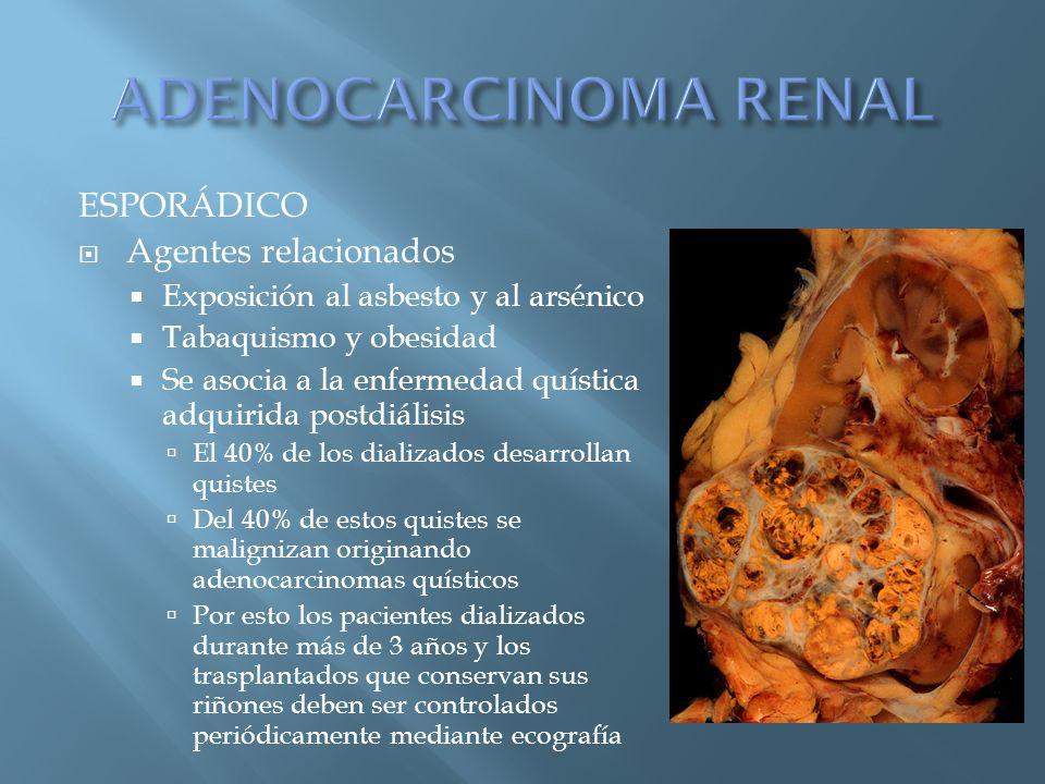 ADENOCARCINOMA RENAL ESPORÁDICO Agentes relacionados