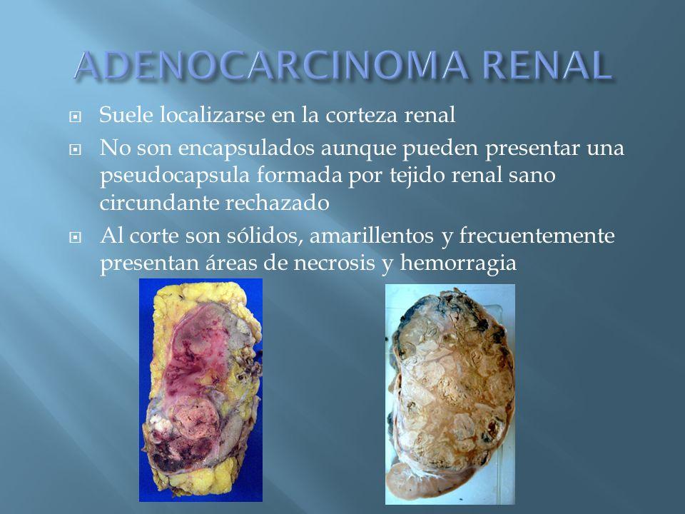 ADENOCARCINOMA RENAL Suele localizarse en la corteza renal