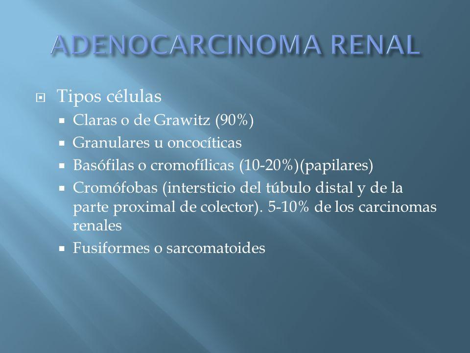 ADENOCARCINOMA RENAL Tipos células Claras o de Grawitz (90%)