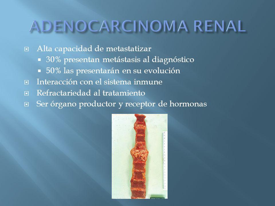 ADENOCARCINOMA RENAL Alta capacidad de metastatizar