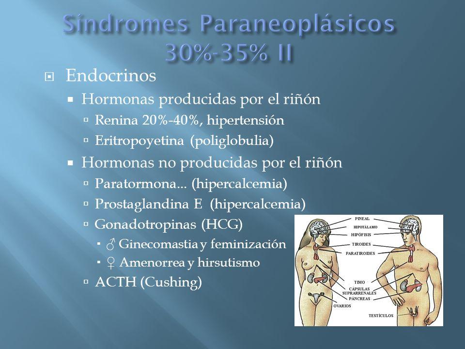 Síndromes Paraneoplásicos 30%-35% II