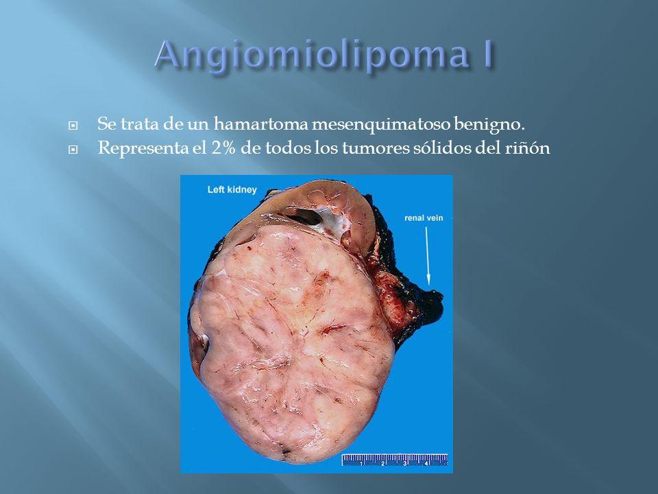 Angiomiolipoma I Se trata de un hamartoma mesenquimatoso benigno.