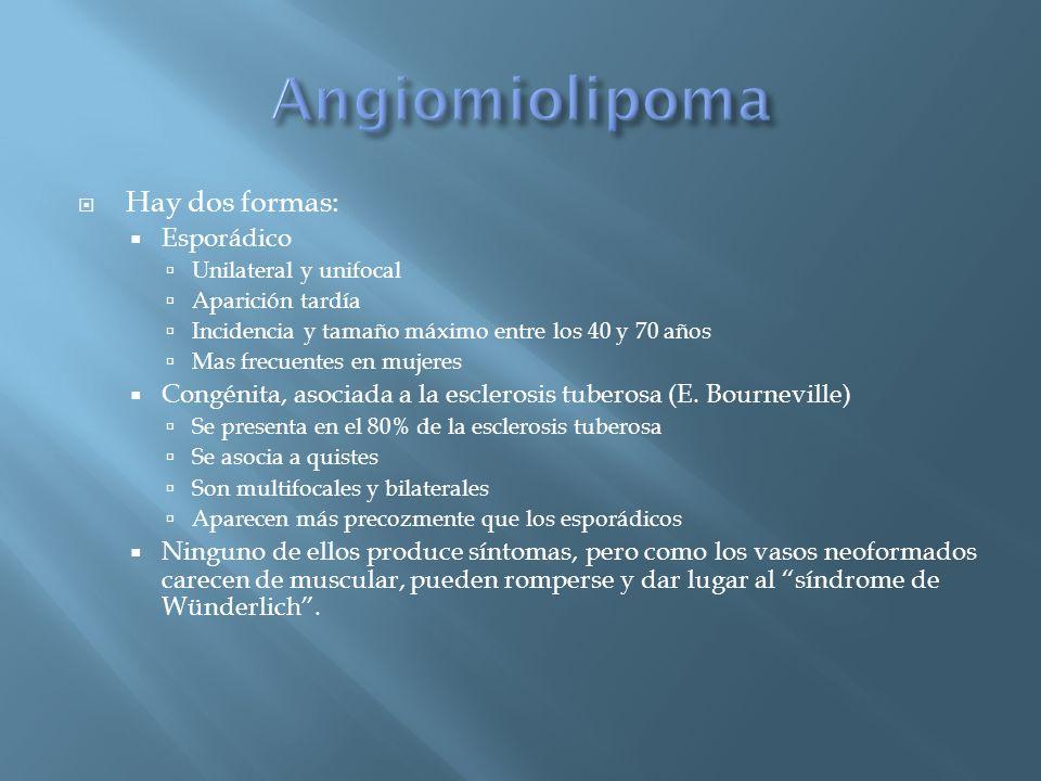Angiomiolipoma Hay dos formas: Esporádico