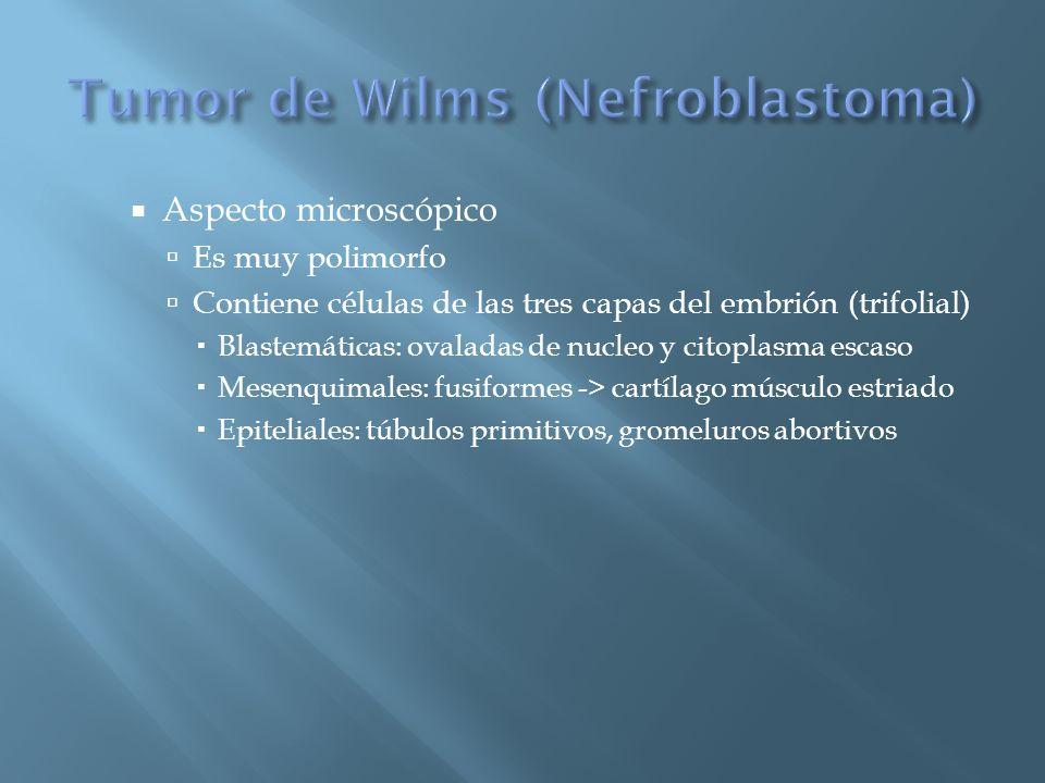 Tumor de Wilms (Nefroblastoma)