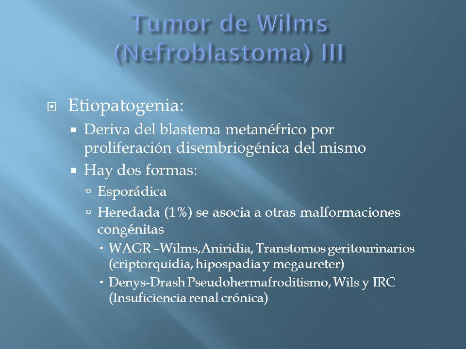 Tumor de Wilms (Nefroblastoma) III