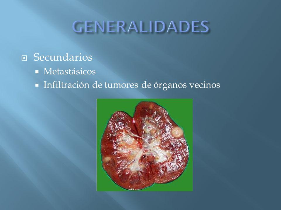 GENERALIDADES Secundarios Metastásicos
