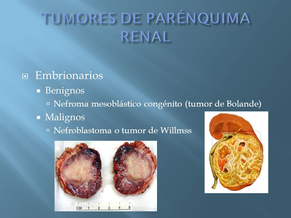 TUMORES DE PARÉNQUIMA RENAL