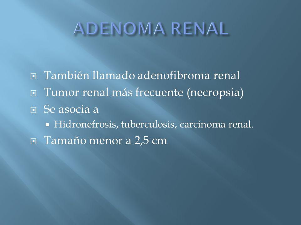 ADENOMA RENAL También llamado adenofibroma renal