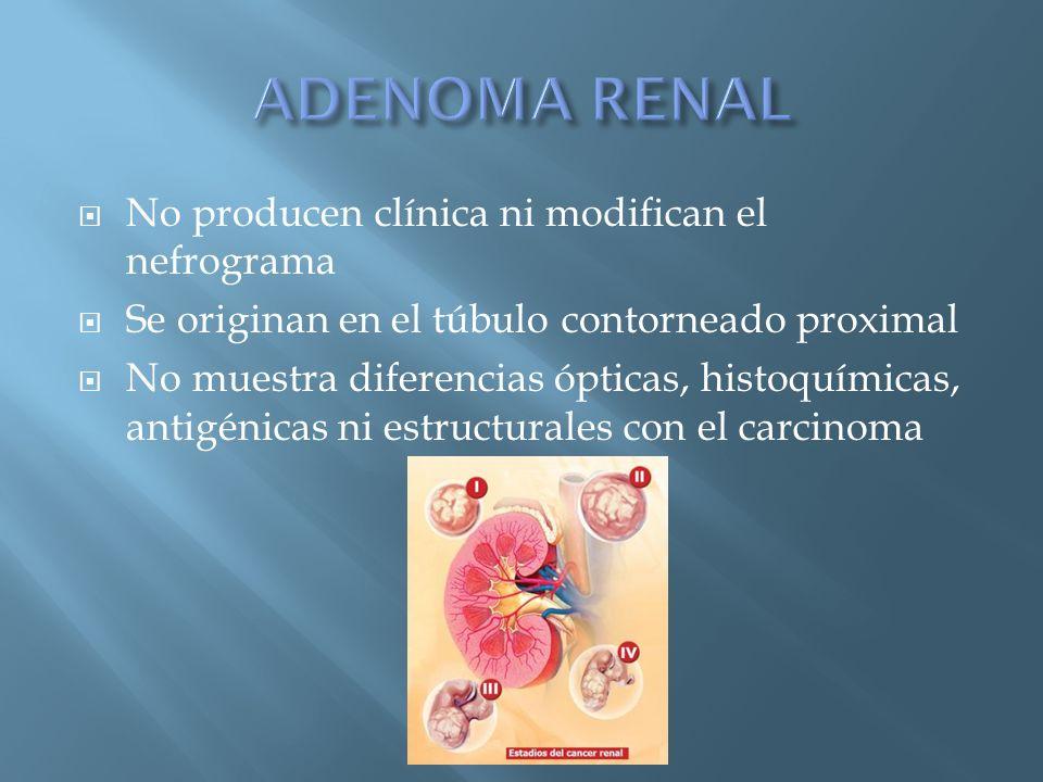 ADENOMA RENAL No producen clínica ni modifican el nefrograma