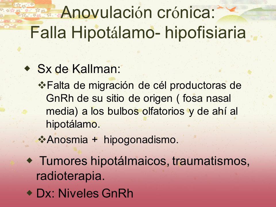 Anovulación crónica: Falla Hipotálamo- hipofisiaria