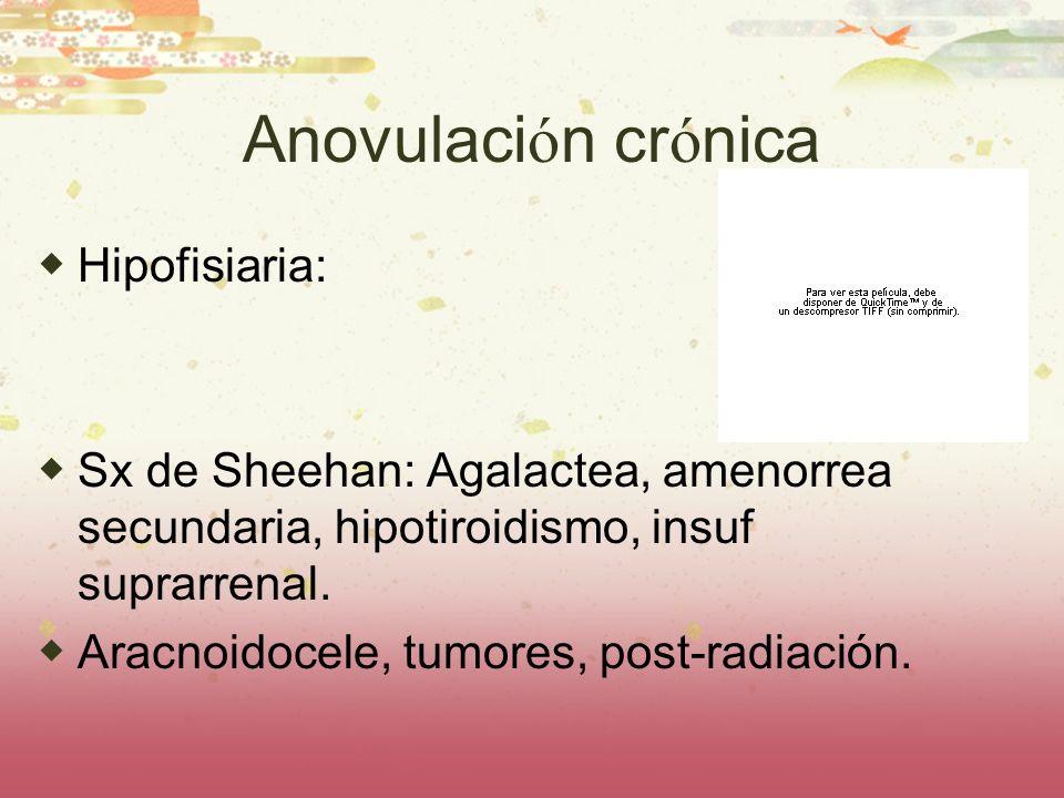 Anovulación crónica Hipofisiaria: