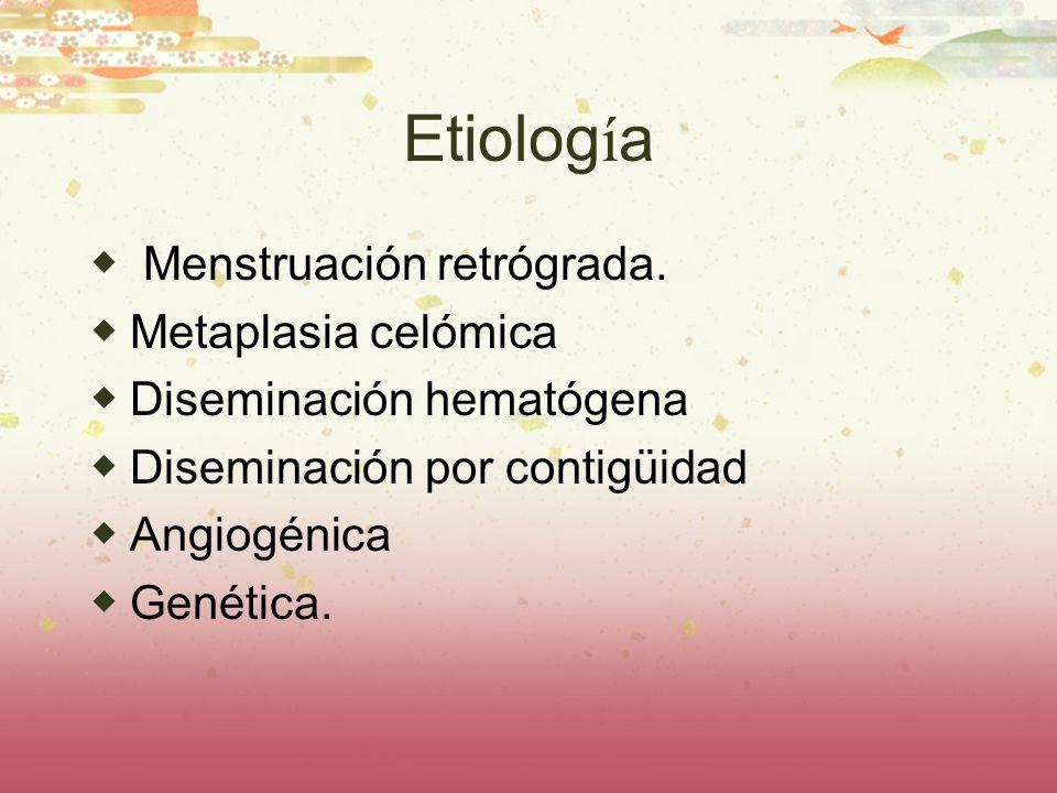Etiología Menstruación retrógrada. Metaplasia celómica