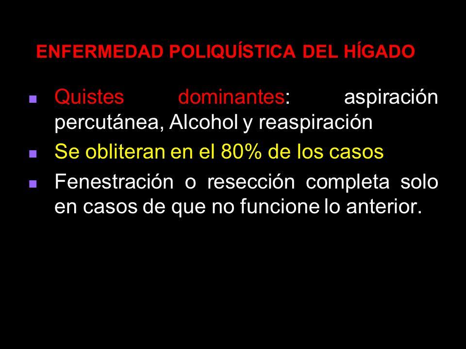 Quistes dominantes: aspiración percutánea, Alcohol y reaspiración