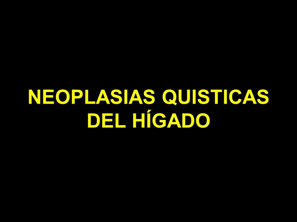NEOPLASIAS QUISTICAS DEL HÍGADO