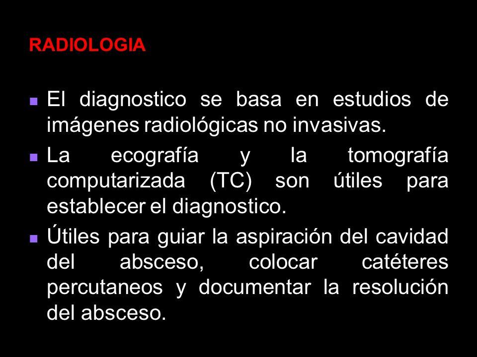 RADIOLOGIA El diagnostico se basa en estudios de imágenes radiológicas no invasivas.
