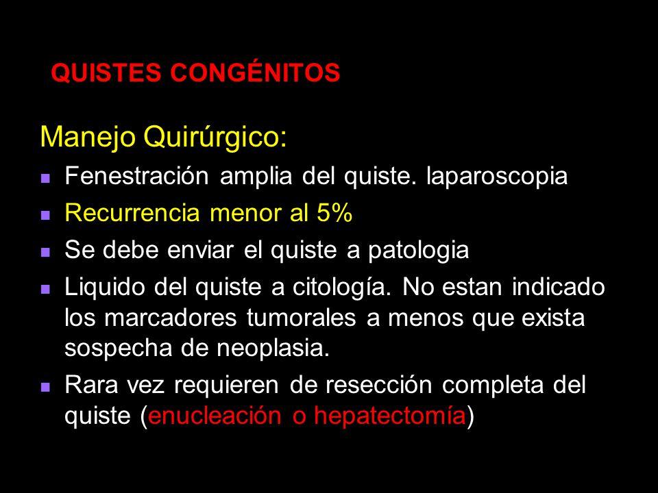Manejo Quirúrgico: QUISTES CONGÉNITOS