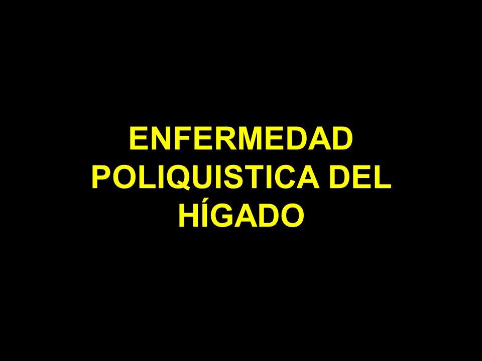 ENFERMEDAD POLIQUISTICA DEL HÍGADO