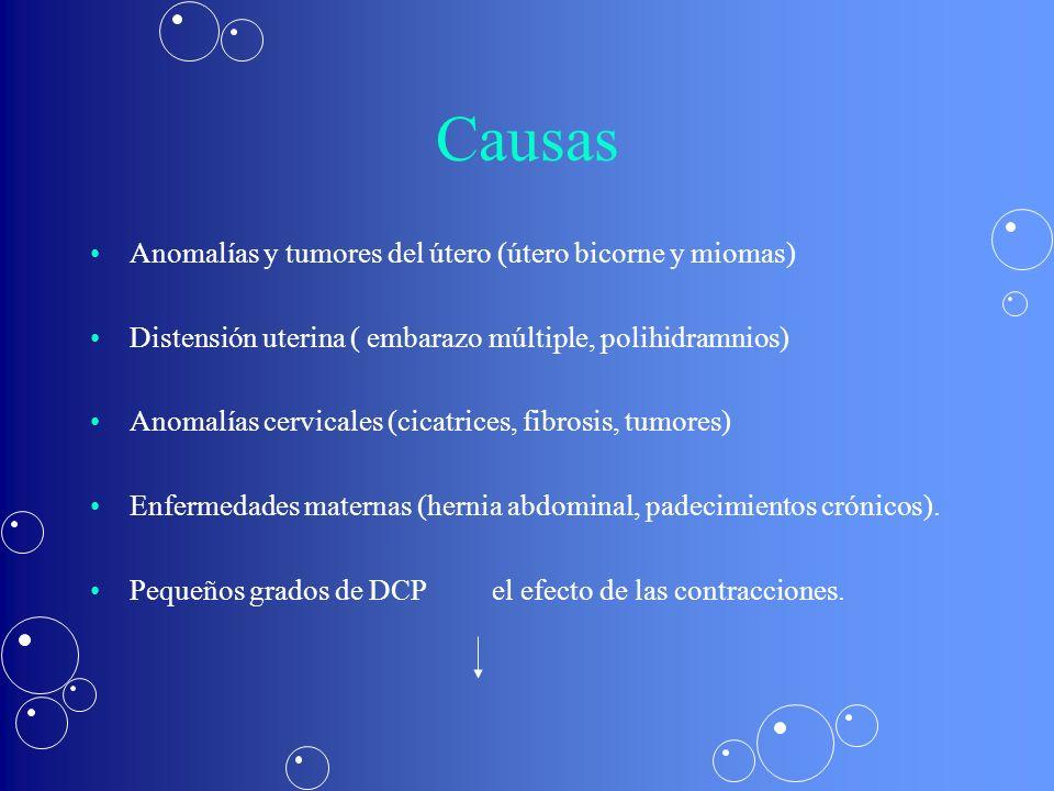 Causas Anomalías y tumores del útero (útero bicorne y miomas)