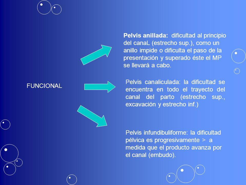 Pelvis anillada: dificultad al principio del canaL (estrecho sup