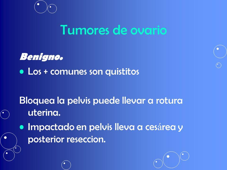 Tumores de ovario Benigno. Los + comunes son quistitos