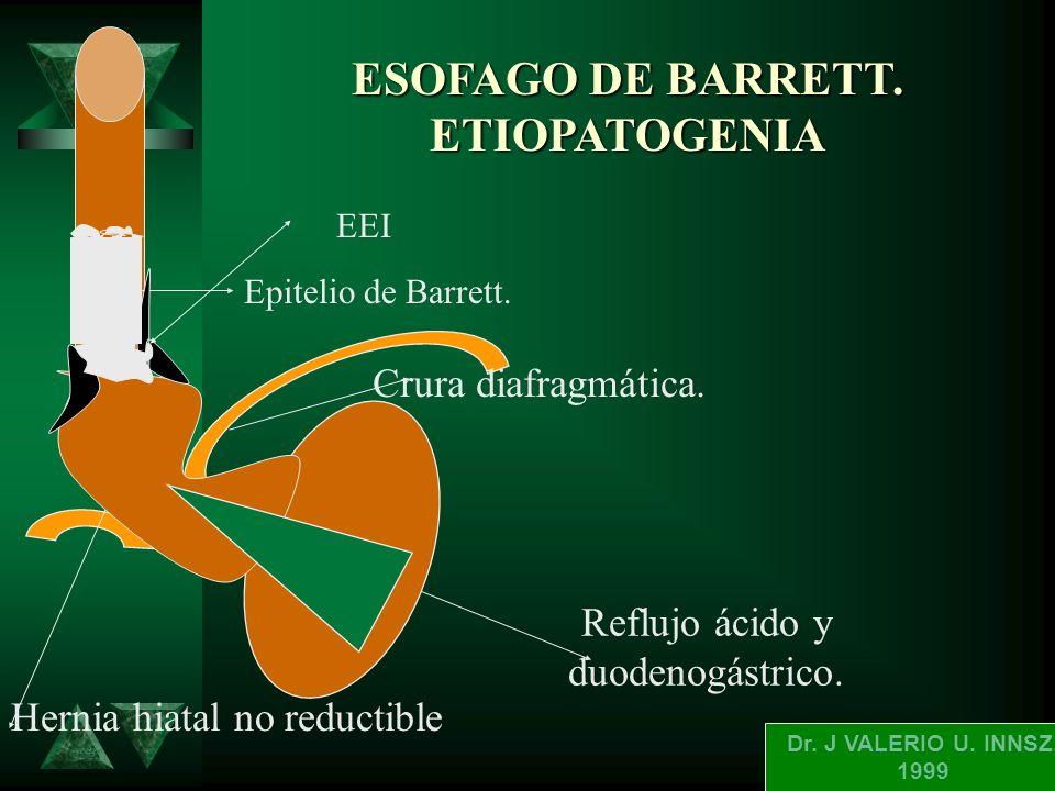 ESOFAGO DE BARRETT. ETIOPATOGENIA
