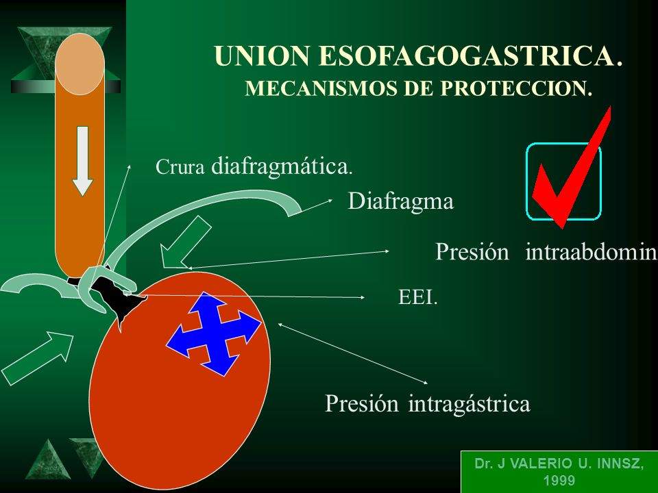 UNION ESOFAGOGASTRICA. MECANISMOS DE PROTECCION.