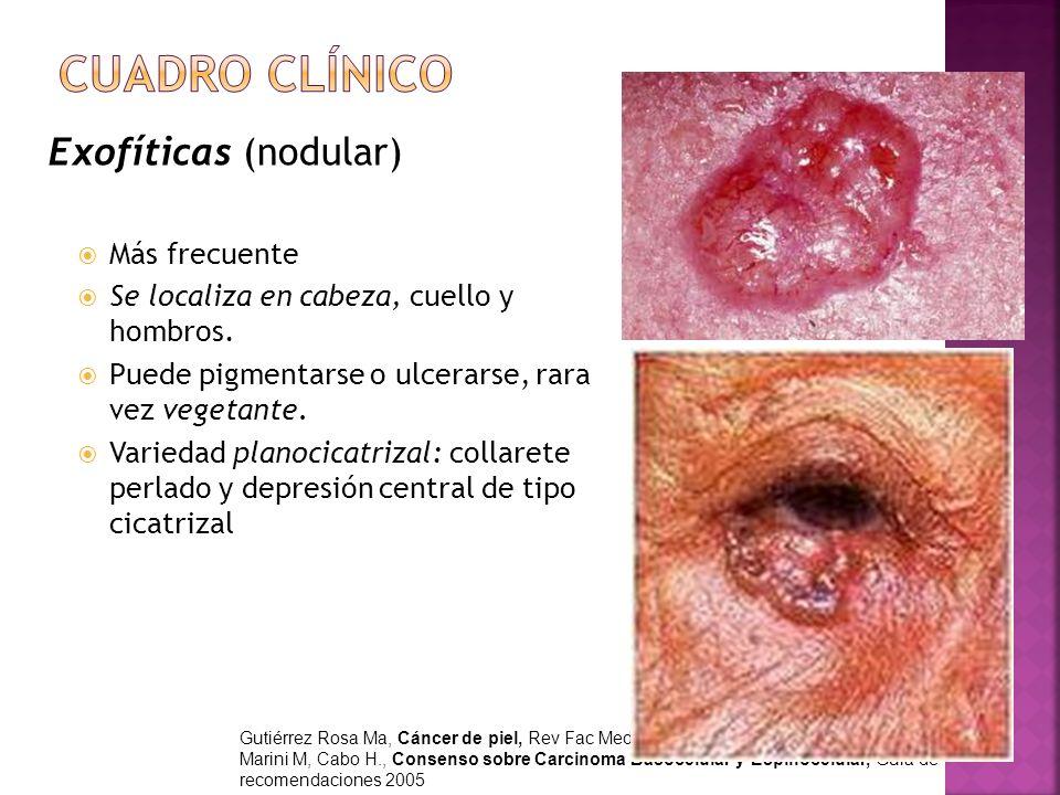 Cuadro clínico Exofíticas (nodular) Más frecuente