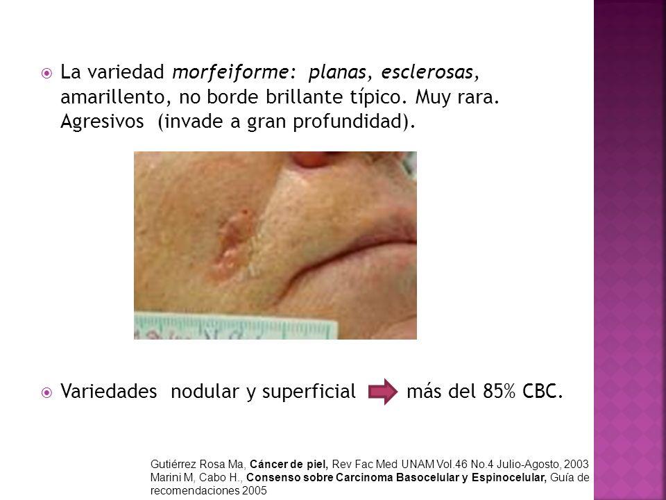 Variedades nodular y superficial más del 85% CBC.