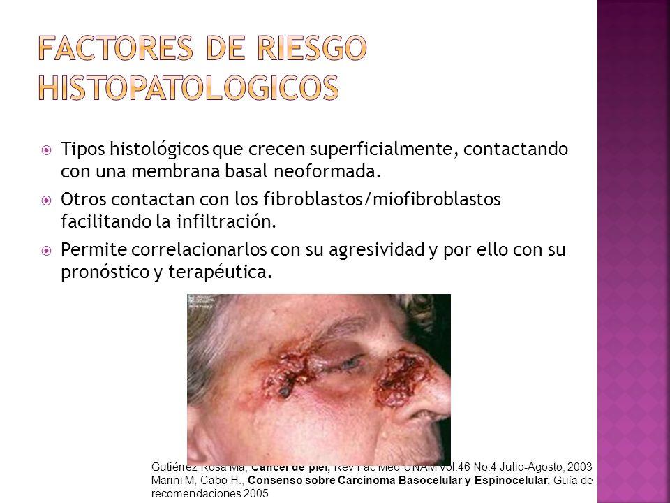 FACTORES DE RIESGO HISTOPATOLOGICOS